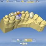 CEREC - Zahnersatz aus Vollkeramik