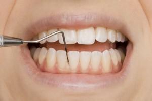 Parodontalsonde zur Messung